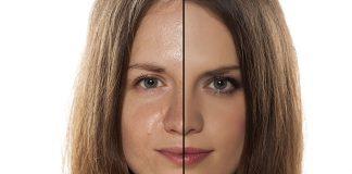 Jak dbać o skórę tłustą