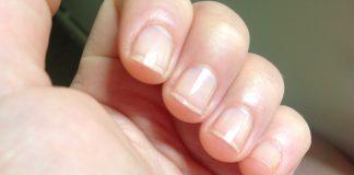 Sposoby na pozbycie się przebarwień z paznokci